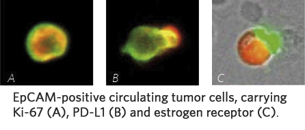 EpCAM-positive circulating tumor cells, carrying Ki-67 (A), PD-L1 (B), and estrogen receptor (C).