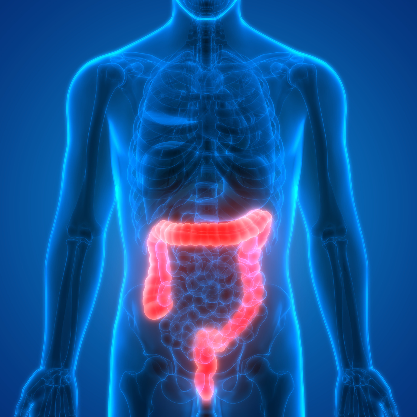 maintrac® for colorectal cancer (carcinoma of the colon)