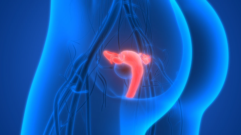 maintrac® for ovarian cancer (Carcinoma of the ovaries)